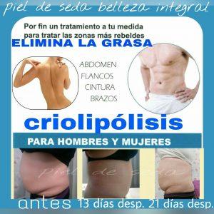 Criolipólisis en Alcalá de Guadaíra