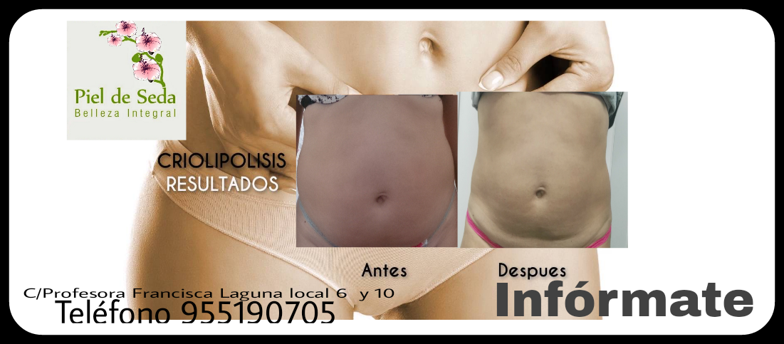Resultados de tratamiento de criolipólisis en Alcalá de Guadaíra
