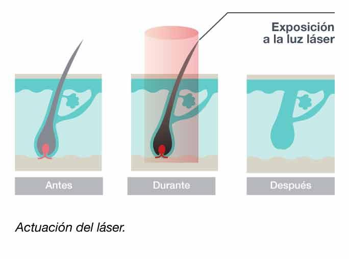 Actuación sobre el pelo de la depilaciión láser