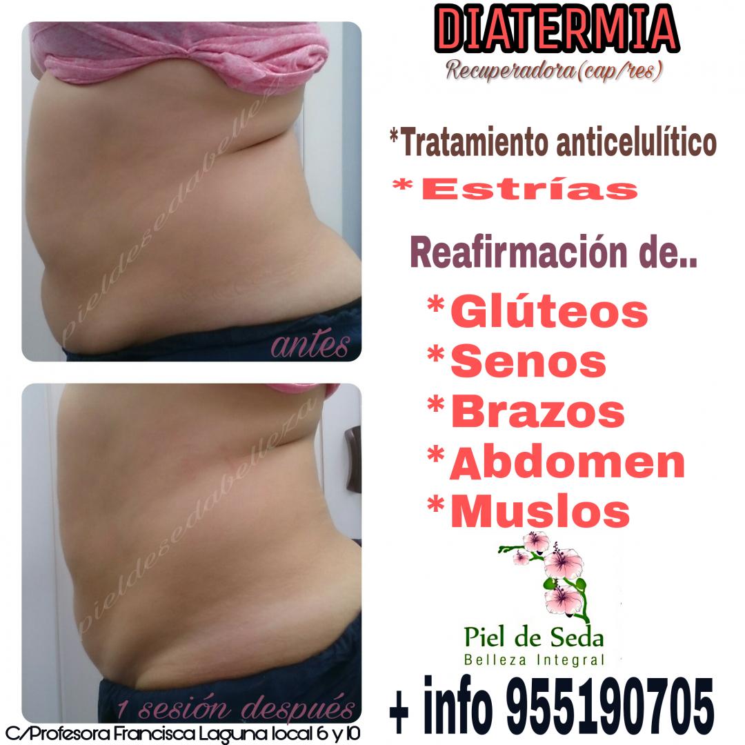 Diatermia en Alcalá de Guadaíra