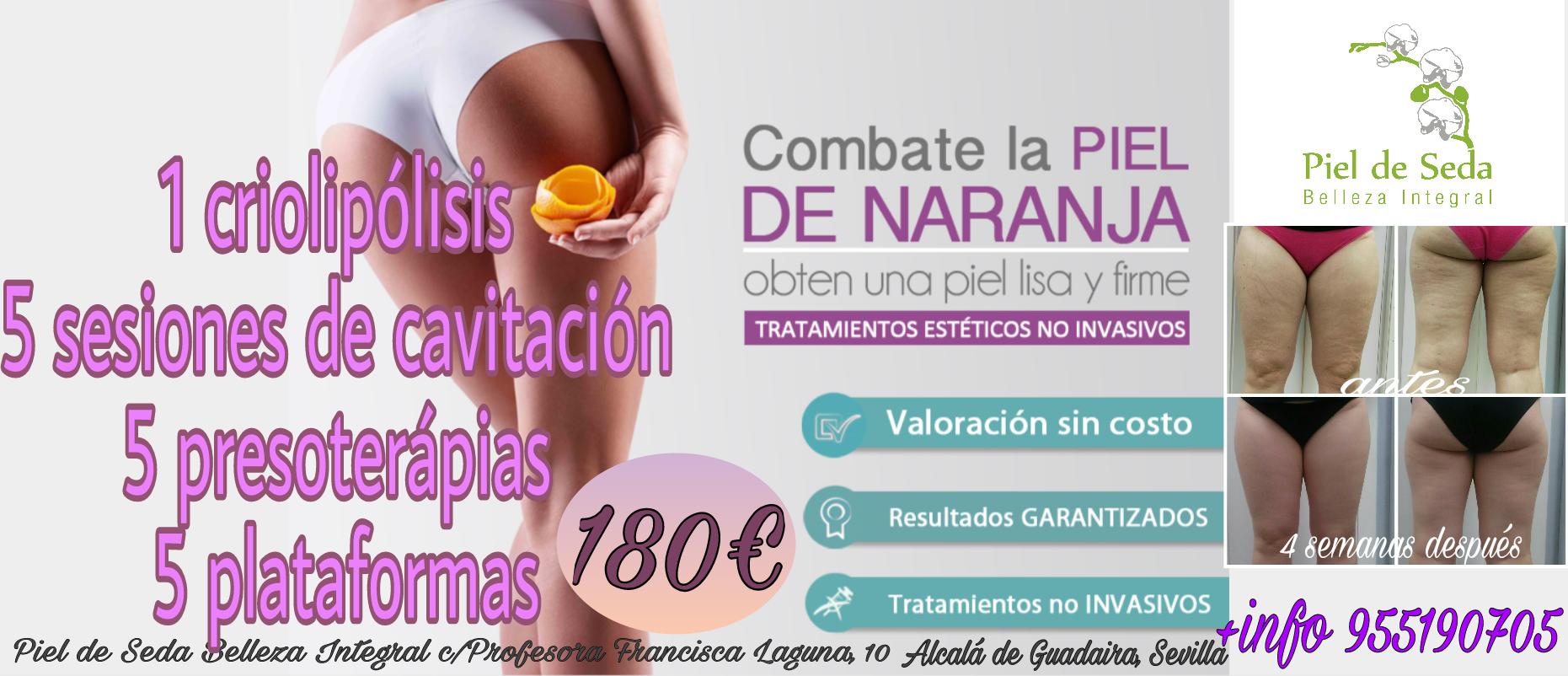 Oferta de Criolipólisis en Alcalá de Guadaíra